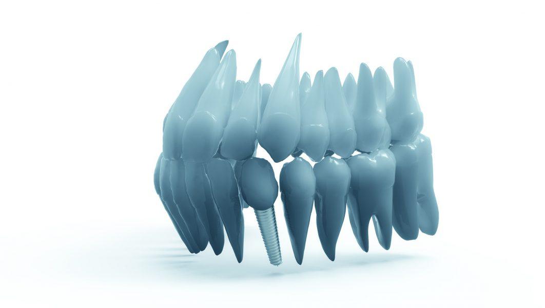 teeth-2833417_1920